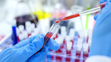 Photo of New Blood Test Detects 50 Types of Cancer Before Any Clinical Signs Emerge