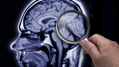Photo of Brain and Spinal Cord Damages Could Soon Be a Thing of the Past